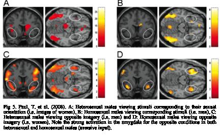 Homosexual brains versus heterosexual brains